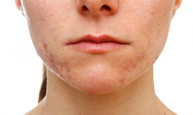 Woman with acne and acne scars needs LED light therapy for acne to remove them.