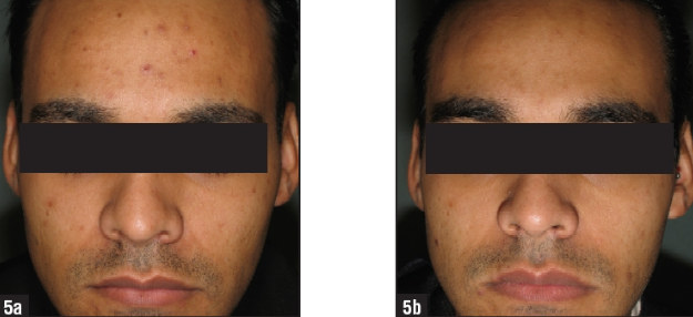 Man with acne in a study published by the Journal of Clinical and Aesthetic Dermatology