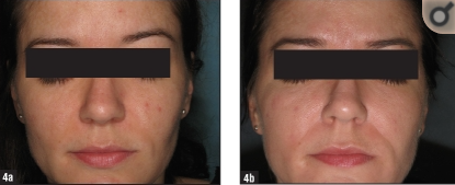 Woman with acne in a study published in the Journal of Clinical and Aesthetic Dermatology