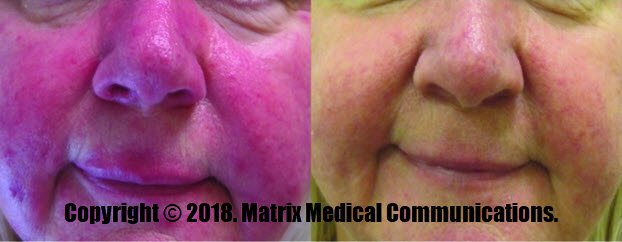 Rosacea: Before and 3 months after Red Light Therapy.  One treatment per week for 9 weeks. Photo by Glynis Ablon, MD, FAAD