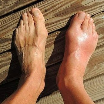 Gout in the right foot compared to the normal left foot. FullStrideHealth.com