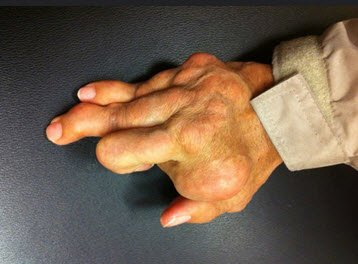 Hand gout. Photo by Handarmdoc