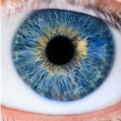 close up picture of a blue eyeball with yellow pigments